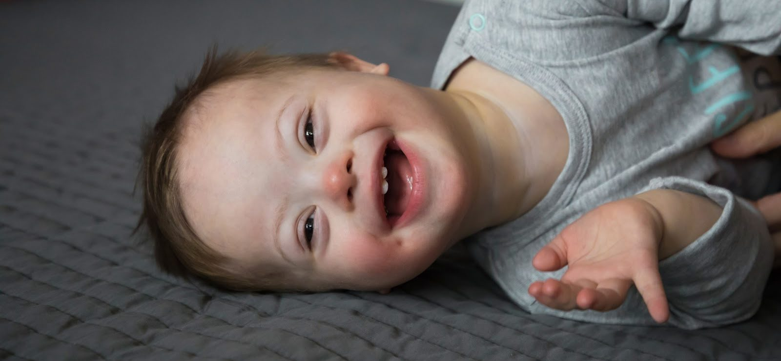 baby boy with down syndrome